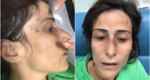Eşini darbederek kemiklerini kıran doktora hapis cezası verildi