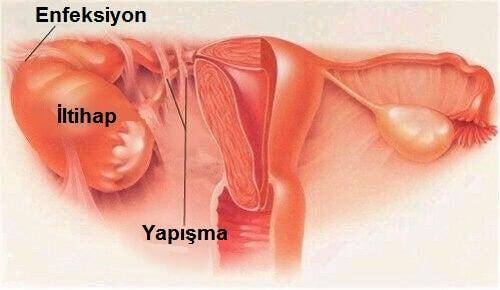 pelvik-inflamatuar-hastaligi-tedavisi