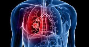 Akciğer iltihabı belirtileri nelerdir?