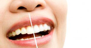 Diş Beyazlatma (Bleaching) Uygulaması